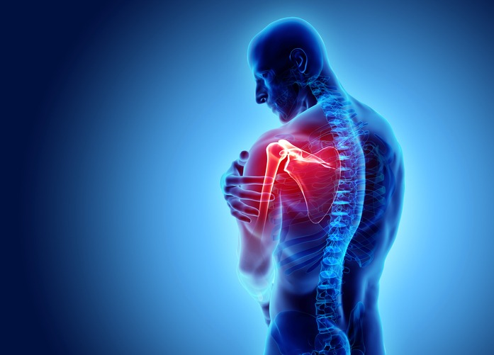 Article and Comment: Shoulder Subacromial Impingement and Surgery – what the latest research tells us
